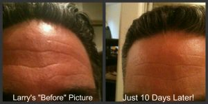 nerium-real-results