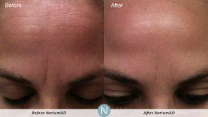 Nerium-AD-Thirties