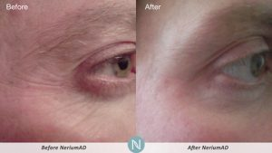 Nerium-AD-for-men-in-thirties