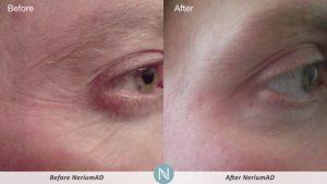 Nerium-AD-for-men-in-thirties