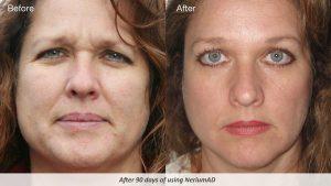 Nerium-AD-Skin-care-women-in-40s