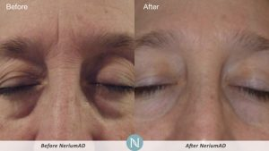 Nerium-Results-Man