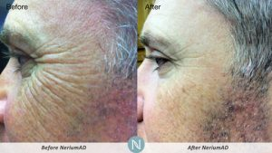 Nerium-Results-Skin-Care-Man