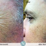 Nerium-Results-Skin-Care