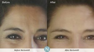 Nerium-Skin-Care-Results