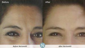 Nerium-Skin-Care-Results
