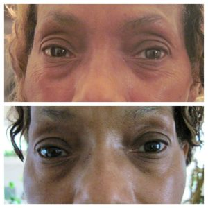 Nerium-results-50s