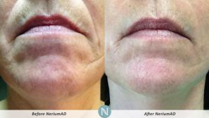 Nerium-skin-care-forties