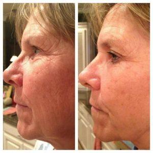 Nerium-skin-care-50s