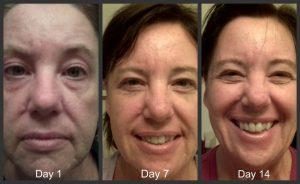 Nerium-skin-care-women-fourties