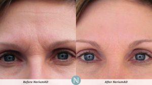 nerium-skin-care