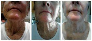 nerium-skin-care-in-60s